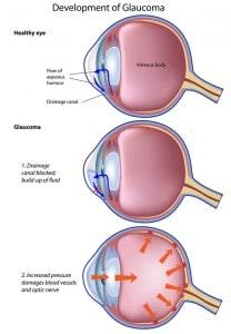 Sleep Apnea and Blindness