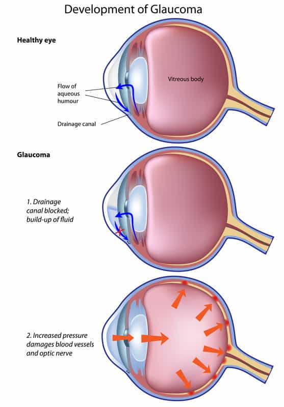 Sleep Apnea and Blindness